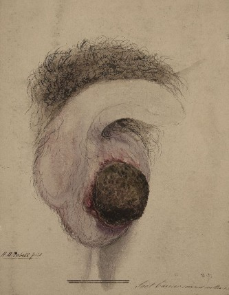 Watercolour drawing of a case of chimney sweep's cancer, 1848. © St. Bartholomew's Hospital Archives & Museum/Wellcome Images
